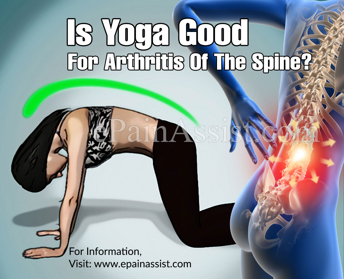 Is Yoga Good For Arthritis Of The Spine?