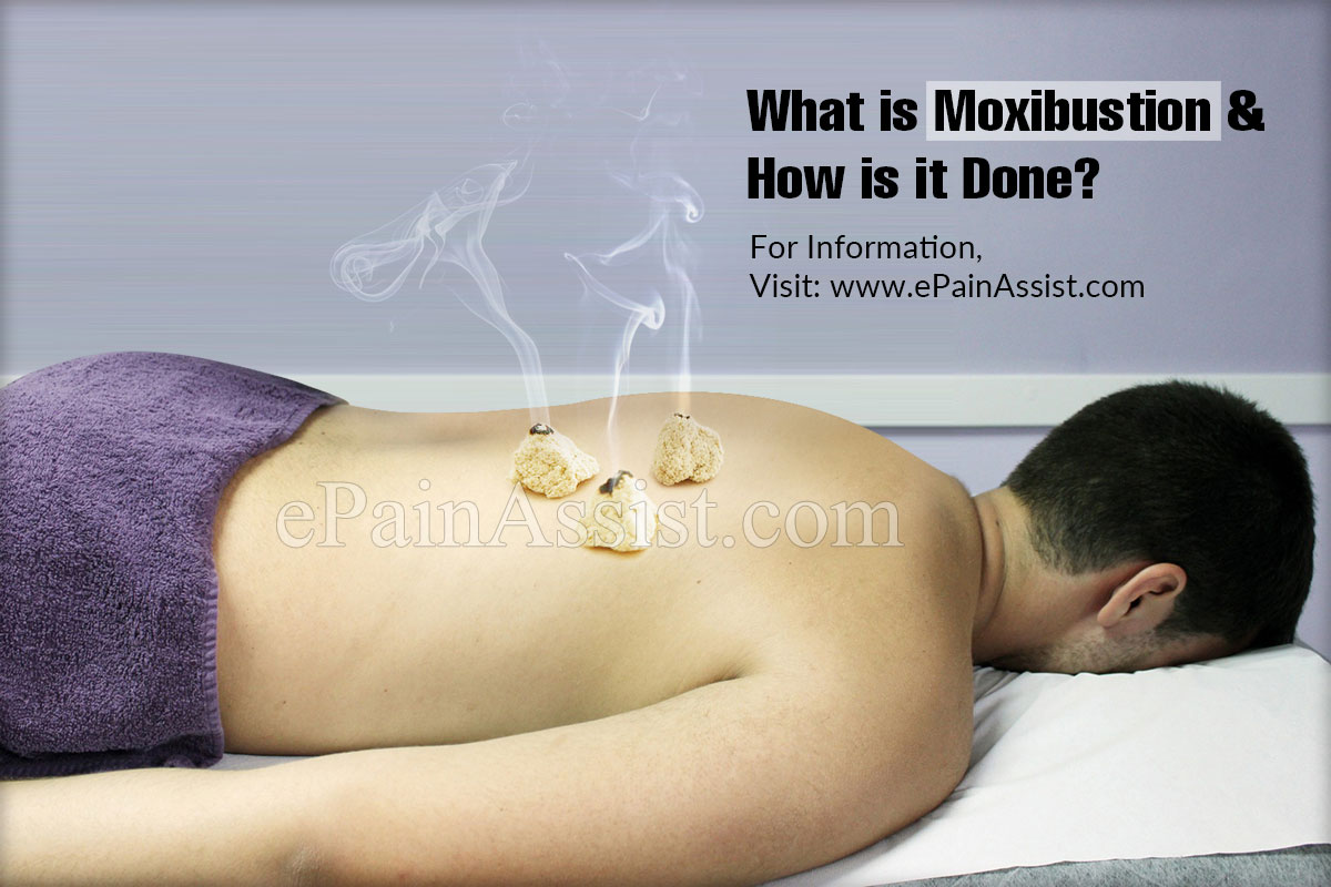 What is Moxibustion & How is it Done?