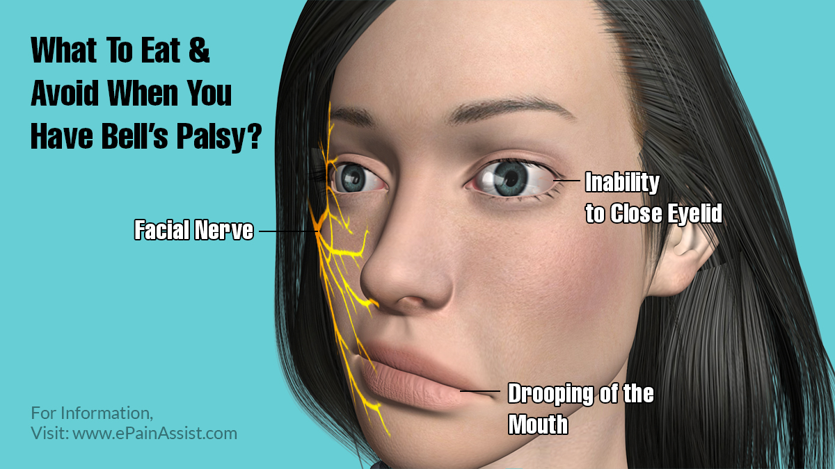 What To Eat & Avoid When You Have Bell's Palsy?