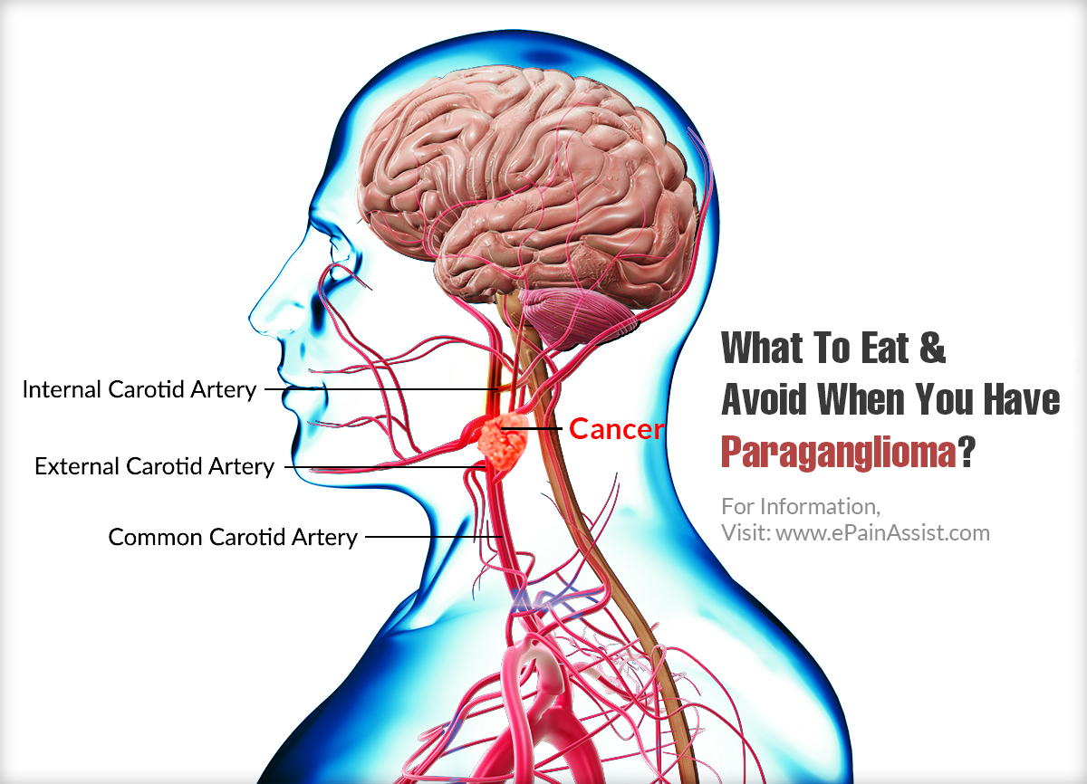 What To Eat When You Have Paraganglioma?