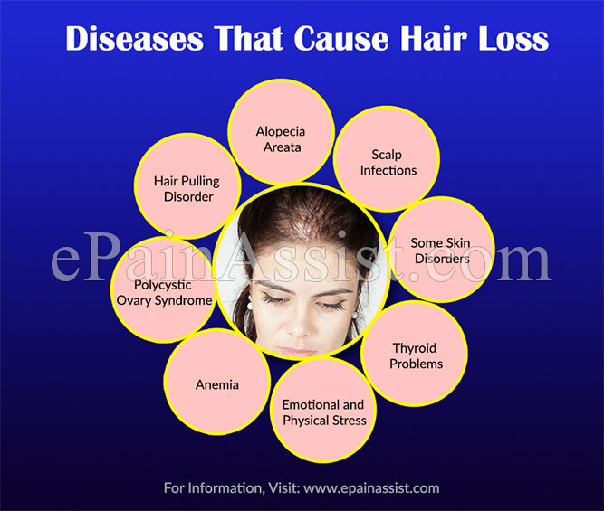 Diseases That Cause Hair Loss