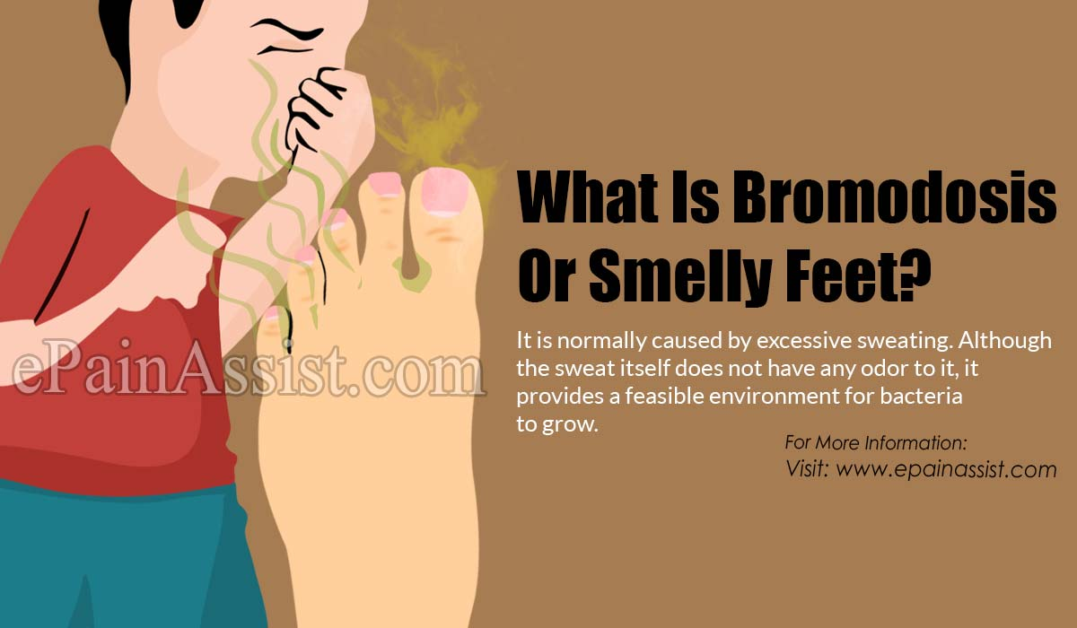 Bromodosis Or Smelly Feet: Causes, Symptoms, Treatment