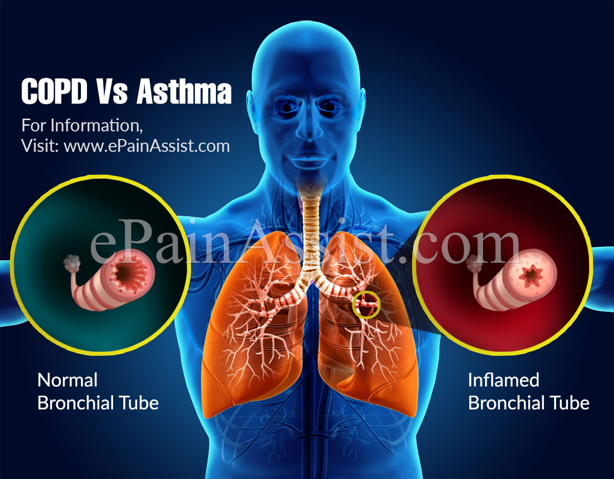 COPD Vs Asthma: Differences Worth Knowing