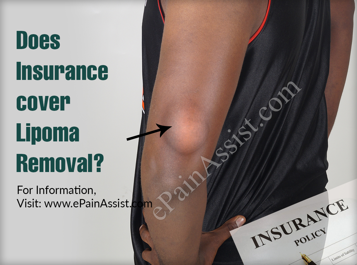 Does Insurance Cover Lipoma Removal?