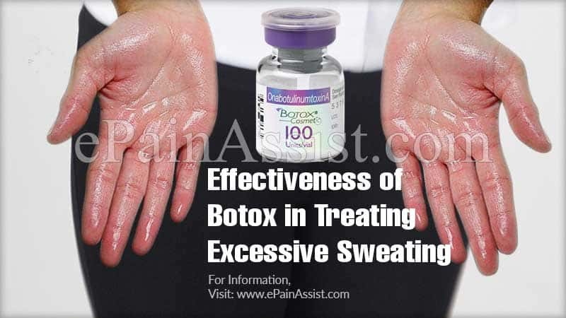 Effectiveness of Botox in Treating Excessive Sweating