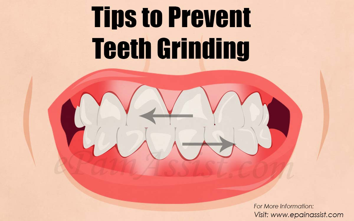 Tips to Prevent Teeth Grinding