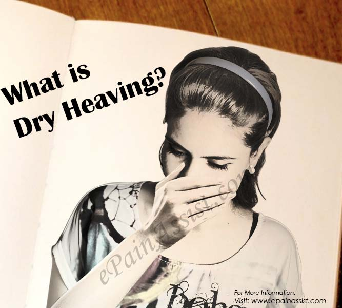 What is Dry Heaving?