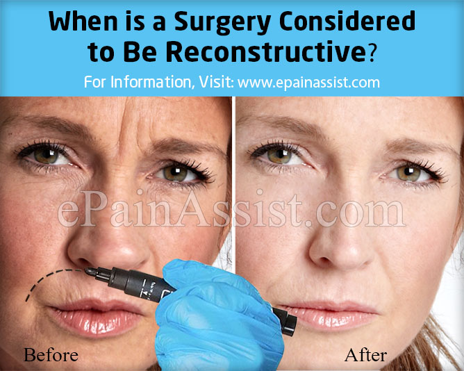When is a Surgery Considered to Be Reconstructive?