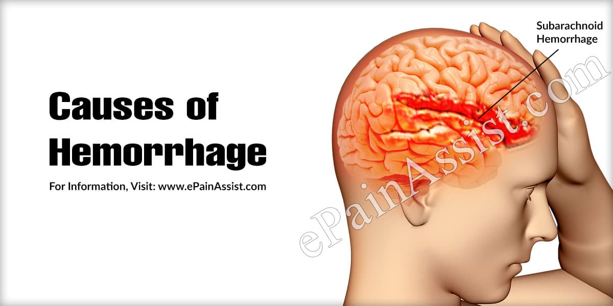 Causes of Hemorrhage