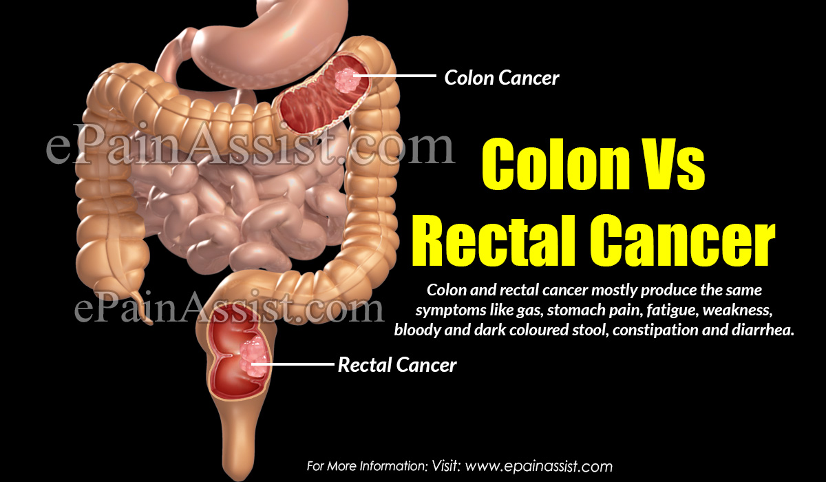 Difference Between Colon And Rectal Cancer Based On Origin Of Cancer Its Symptoms Diagnosis Treatment
