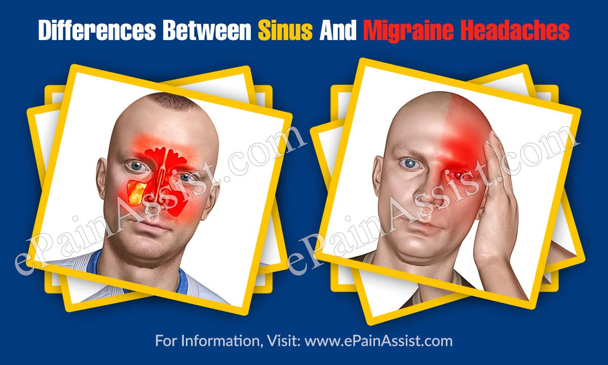 Differences Between Sinus And Migraine Headaches