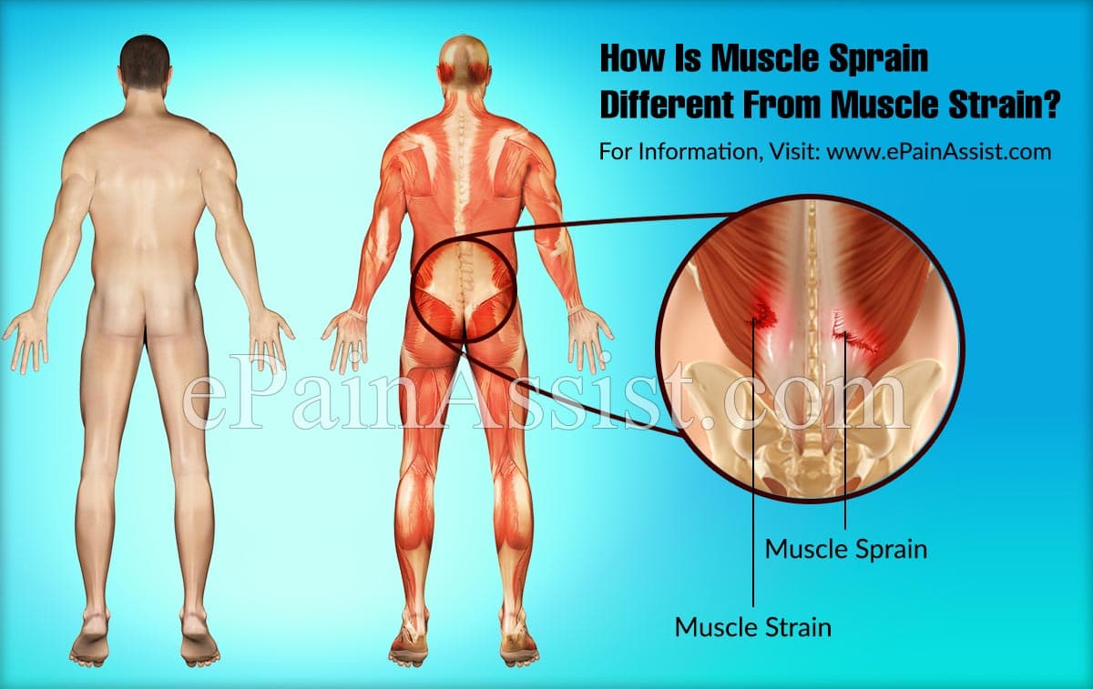 How Is Muscle Sprain Different From Muscle Strain?