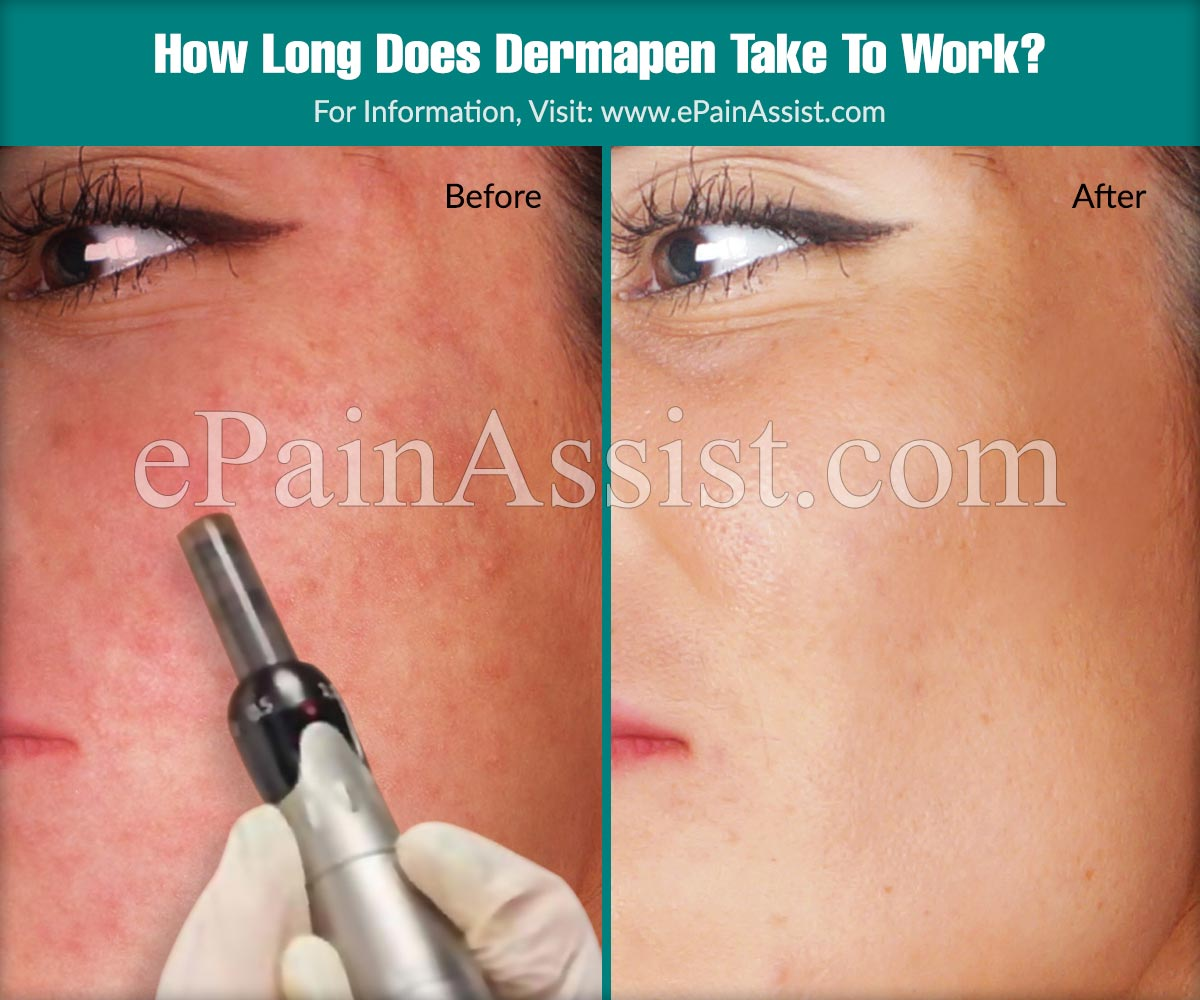 How Long Does Dermapen Take To Work?