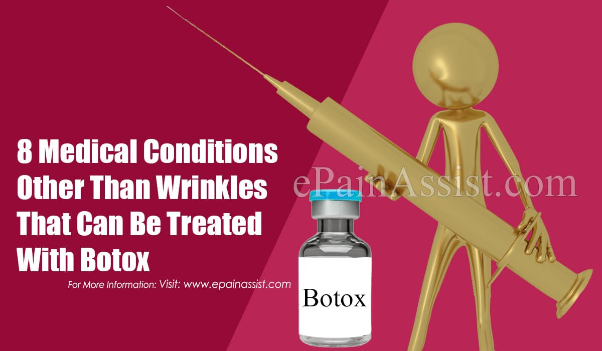 8 Medical Conditions Other Than Wrinkles That Can Be Treated With Botox