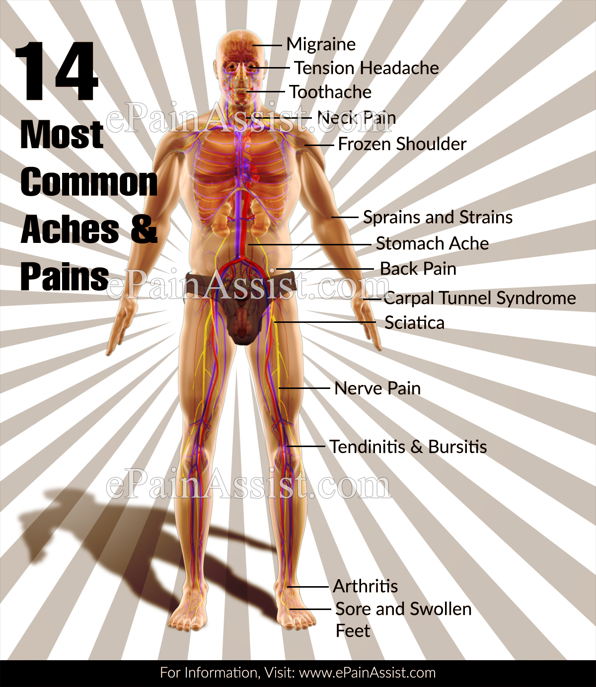 14 Most Common Aches and Pains