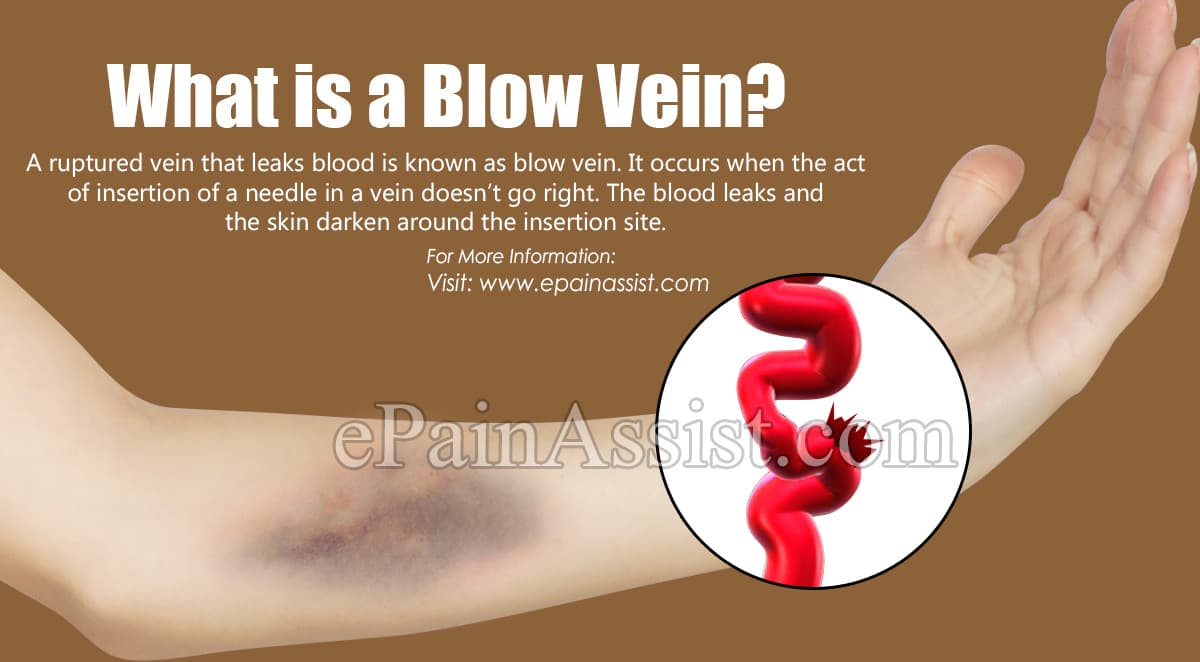 What is a Blow Vein?