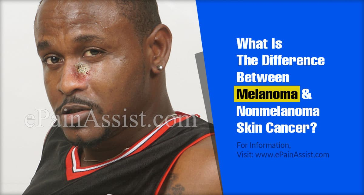 What Is The Difference Between Melanoma & Nonmelanoma Skin Cancer?