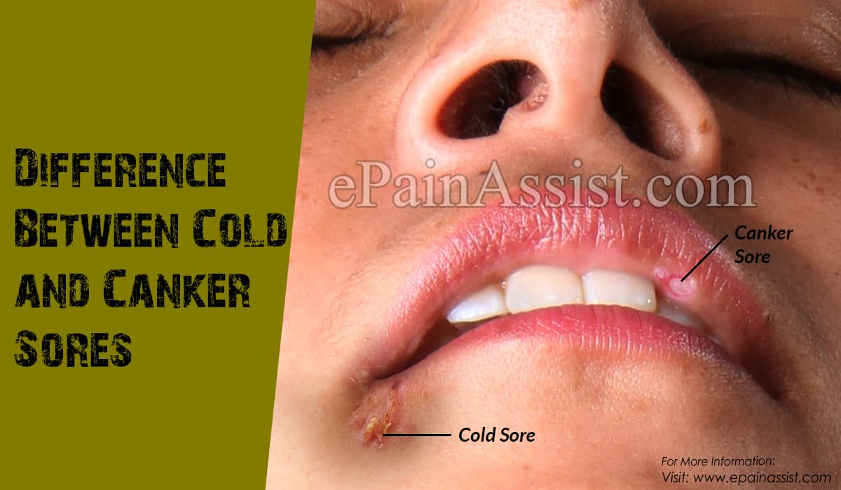 Difference Between Cold and Canker Sores