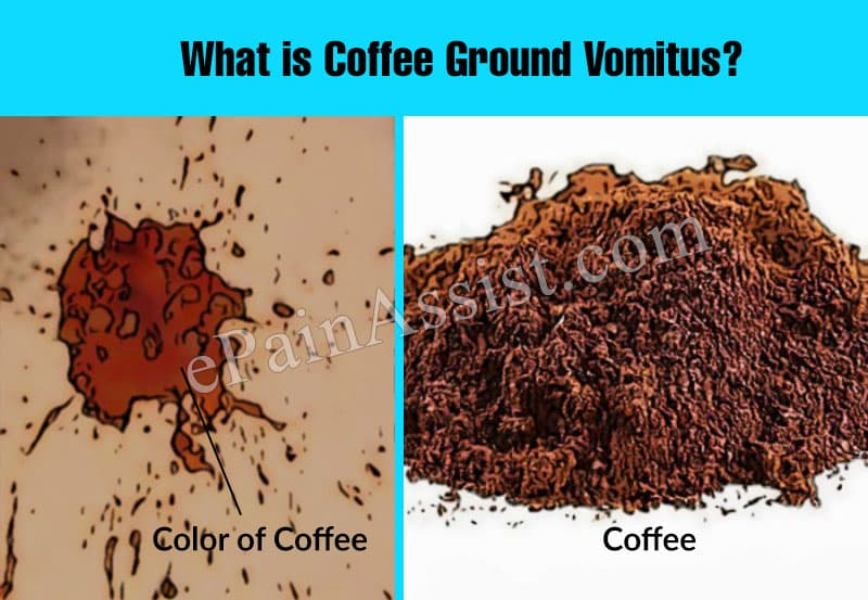 What is Coffee Ground Vomitus?