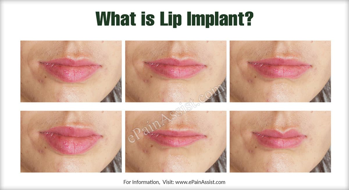 What is Lip Implant?