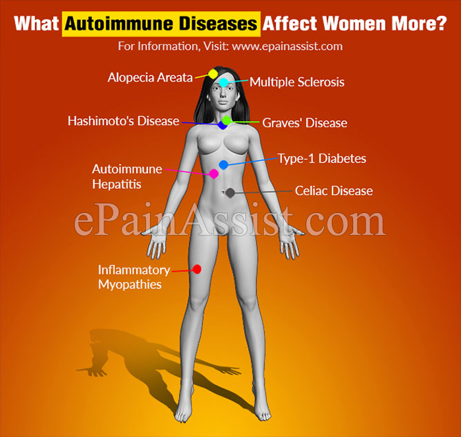 What Autoimmune Diseases Affect Women More & What Are Their Symptoms?