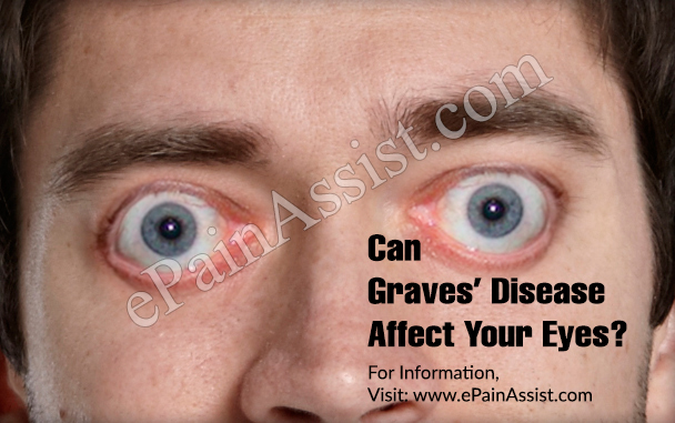 Can Graves' Disease Affect Your Eyes?
