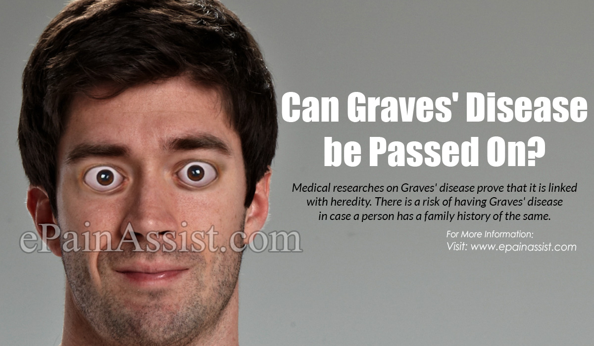 Can Graves' Disease be Passed On?