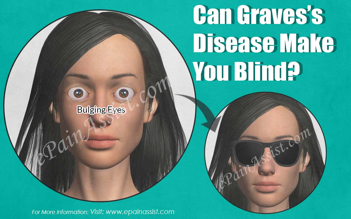 Can Graves's Disease Make You Blind?