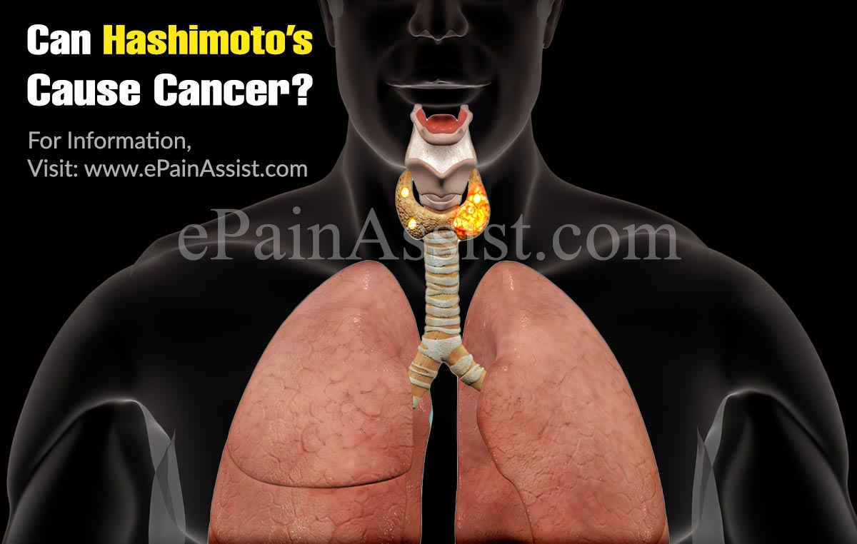 Can Hashimoto's Cause Cancer?