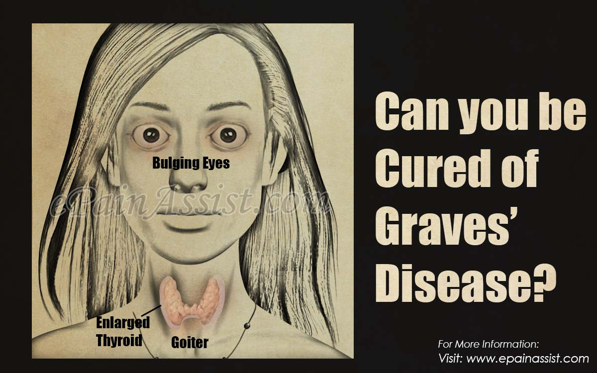 Can you be Cured of Graves' Disease?