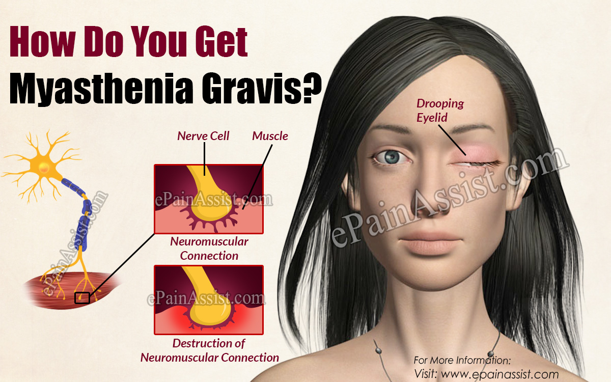 How Do You Get Myasthenia Gravis?