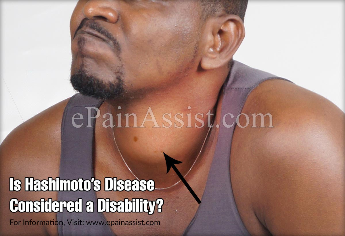 Is Hashimoto's Disease Considered a Disability?