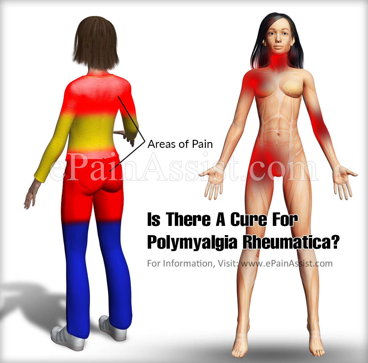 Is There A Cure For Polymyalgia Rheumatica?