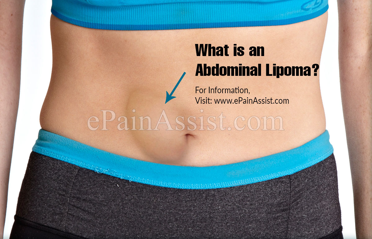 What Is An Abdominal Lipoma?