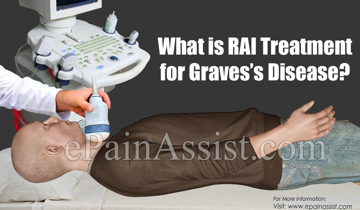 What is RAI Treatment for Graves's Disease?