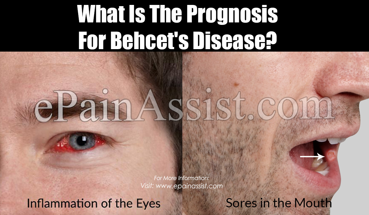 What Is The Prognosis For Behcet's Disease?