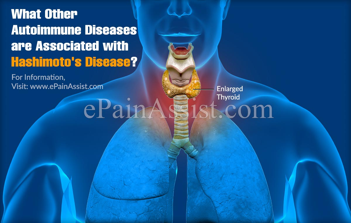 What Other Autoimmune Diseases Are Associated With Hashimoto's Disease?