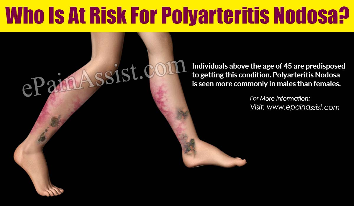 Who Is At Risk For Polyarteritis Nodosa?
