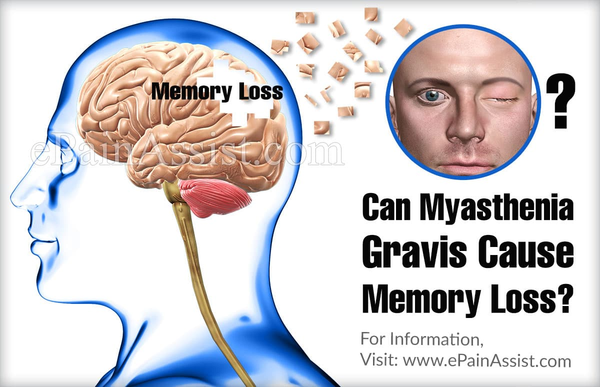 Can Myasthenia Gravis Cause Memory Loss?