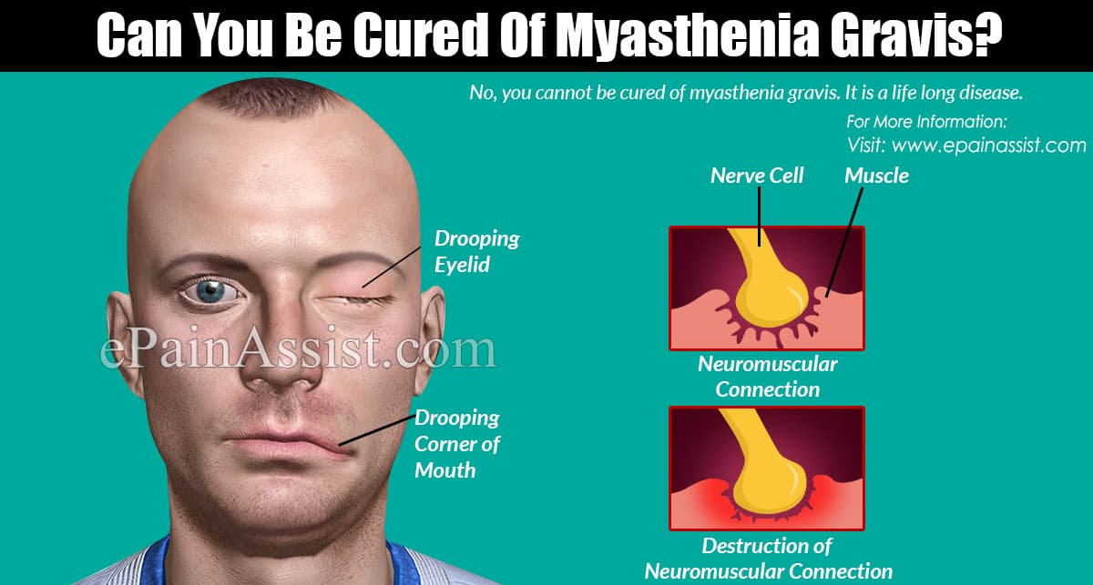 Can You Be Cured Of Myasthenia Gravis?
