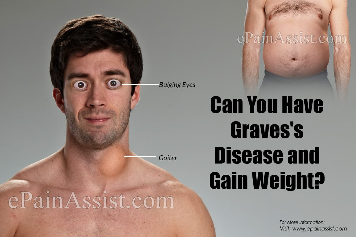 Can You Have Graves's Disease and Gain Weight?