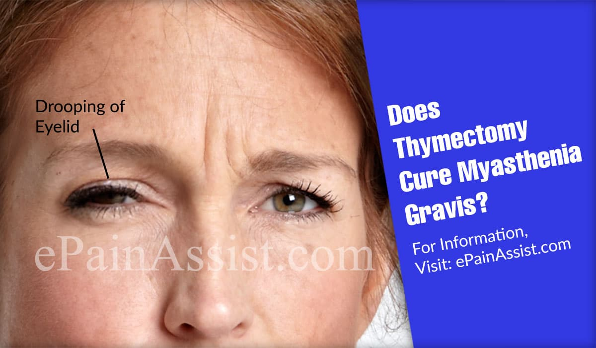 Does Thymectomy Cure Myasthenia Gravis?