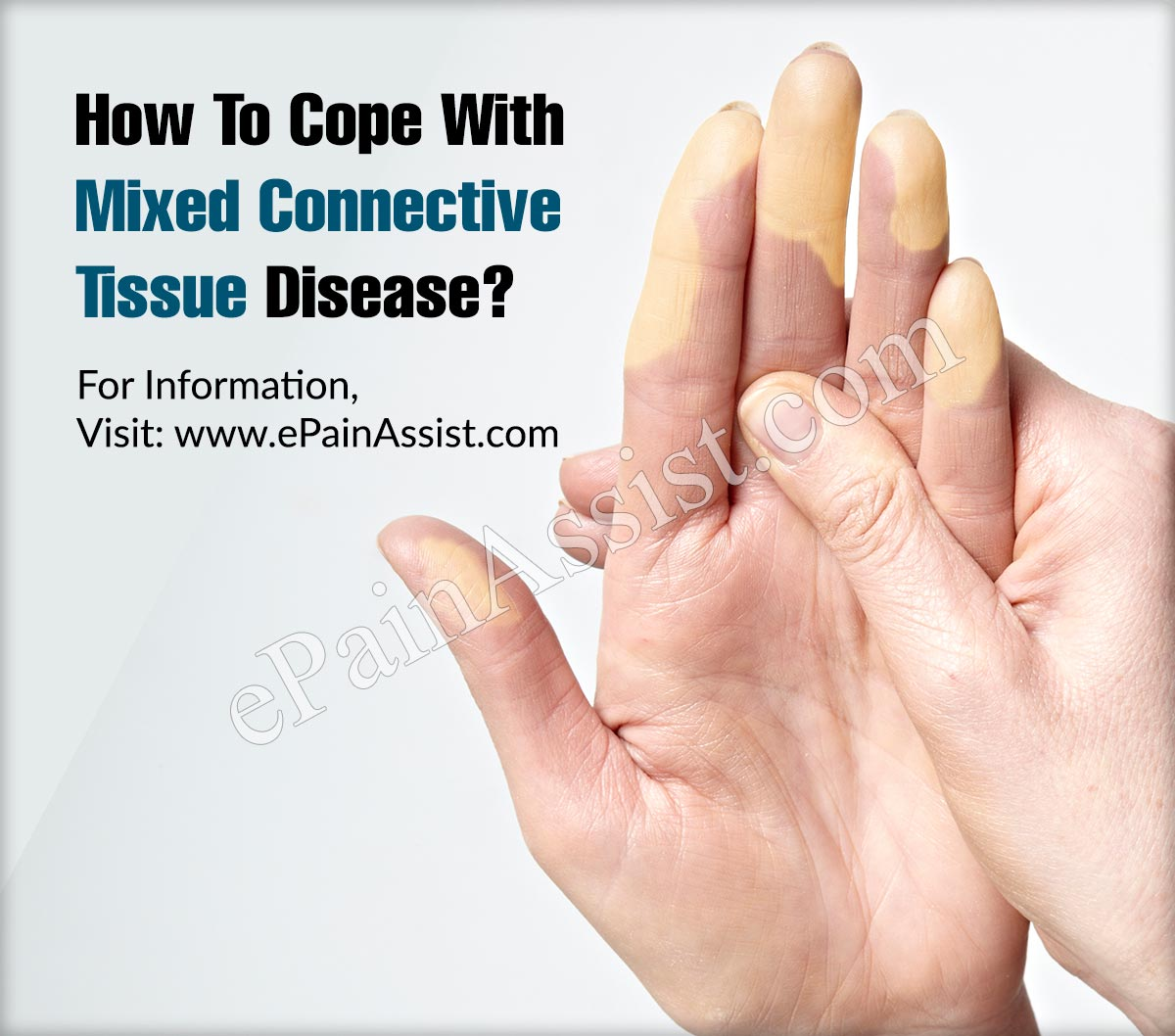How To Cope With Mixed Connective Tissue Disease?