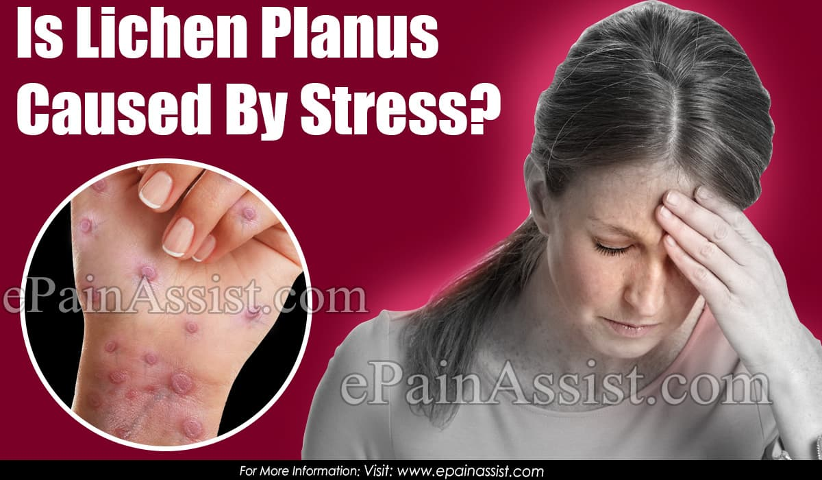 Is Lichen Planus Caused By Stress?