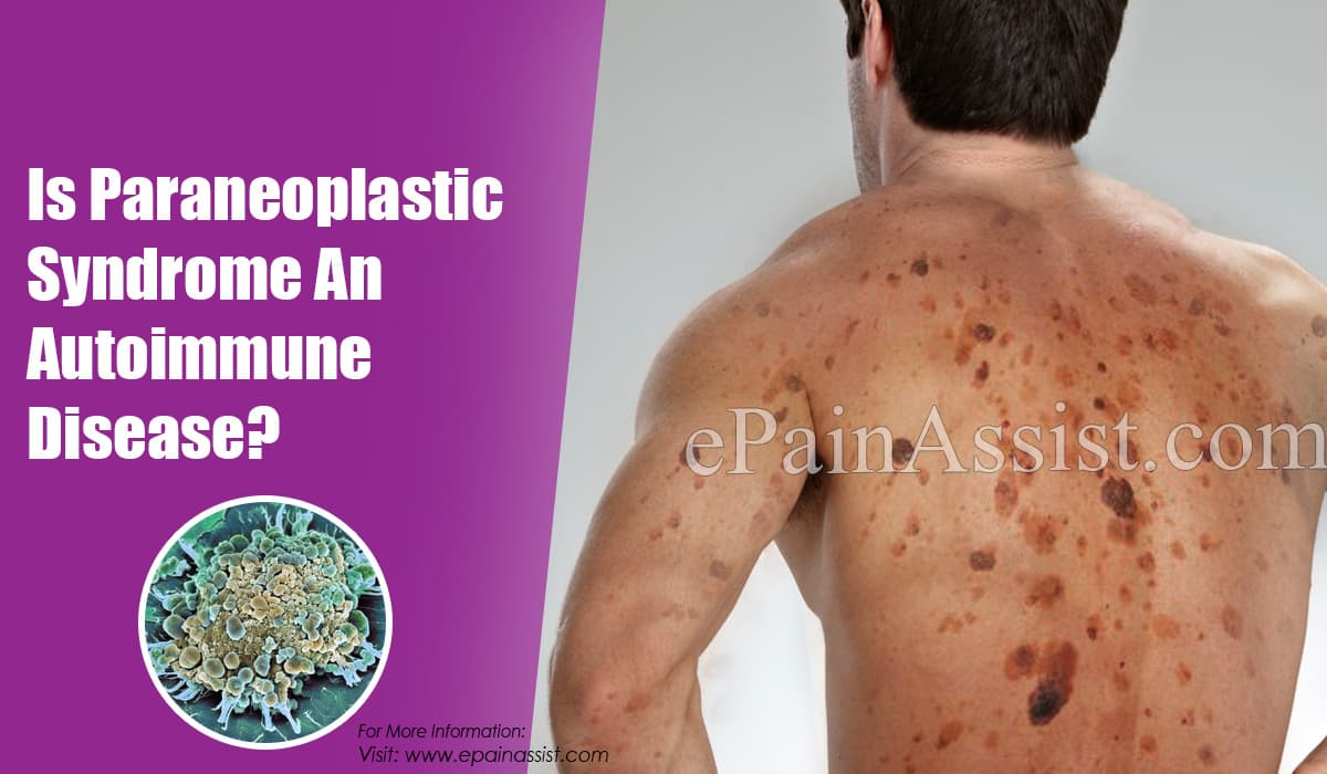 Is Paraneoplastic Syndrome An Autoimmune Disease?