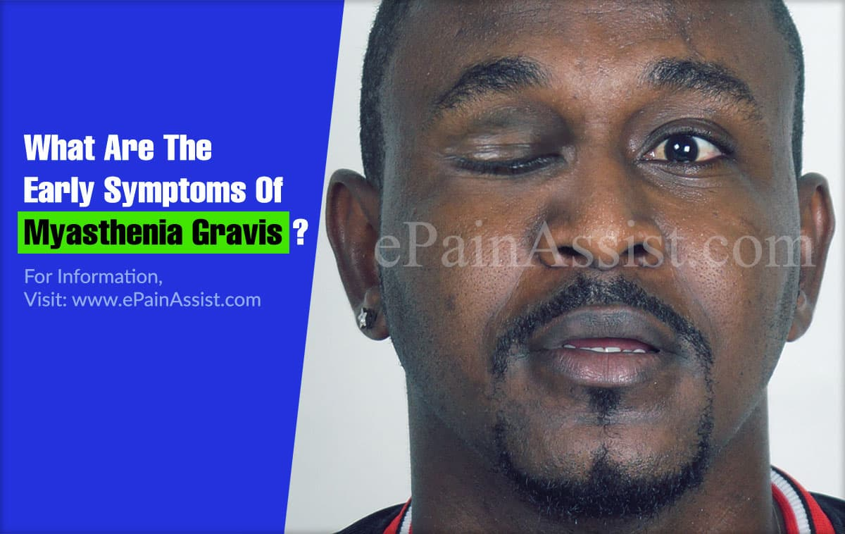 What Are The Early Symptoms Of Myasthenia Gravis?