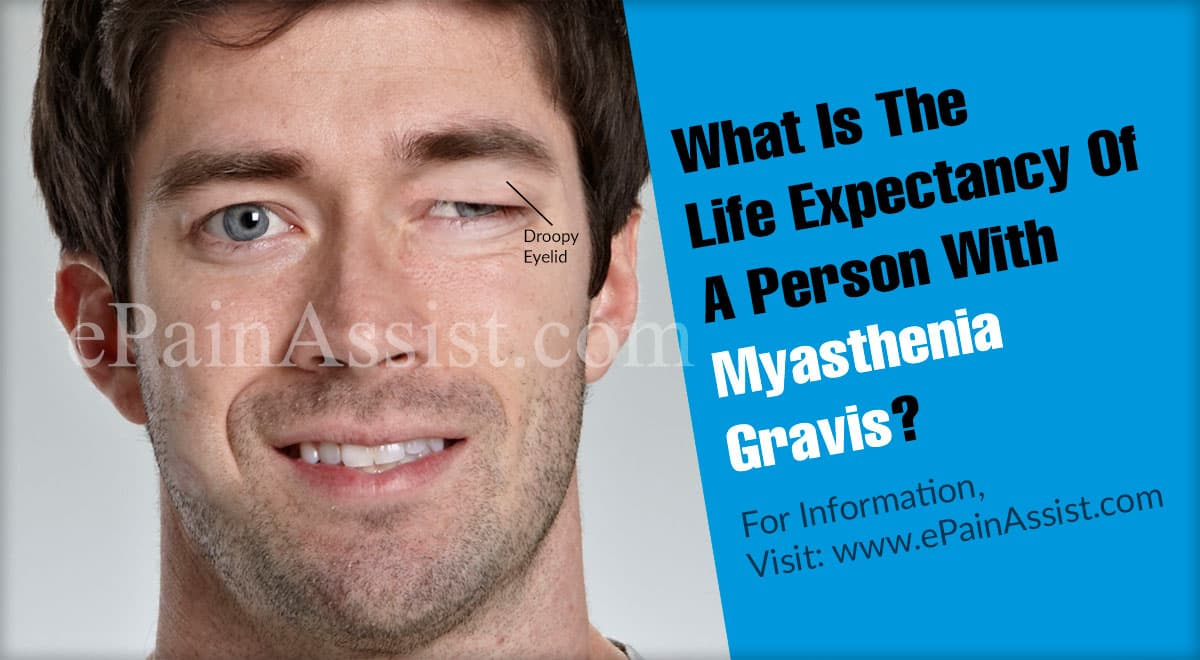 What Is The Life Expectancy Of A Person With Myasthenia Gravis?