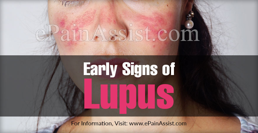 Early Signs of Lupus