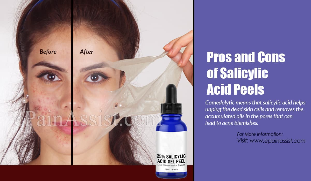 Pros and Cons of Salicylic Acid Peels
