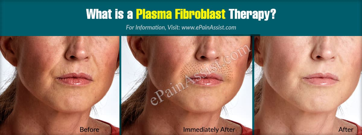 What is a Plasma Fibroblast Therapy?
